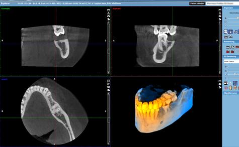 Räumliche Darstellung von Kiefer und Zähnen in 3D