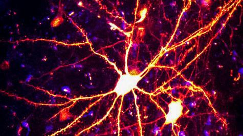 Reconstitution du réseau neuronal d'un oiseau chanteur, impliqué dans l'apprentissage du chant (projet BRAIN)