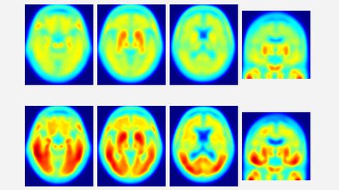 TEP montrant des dépôts de protéine Tau dans le cerveau de personnes en bonne santé (en haut) et ceux avec Alzheimer (en bas). Les zones rouges indiquent les dépôts de tau