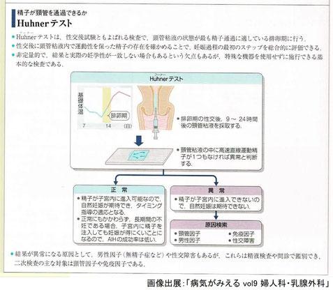 フーナーテスト:精子が頸管を通過できるか