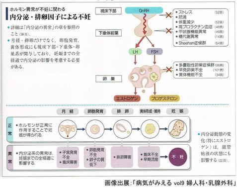 ホルモン異常が不妊に関わる