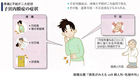 子宮内膜症:疼痛と不妊が二大症状
