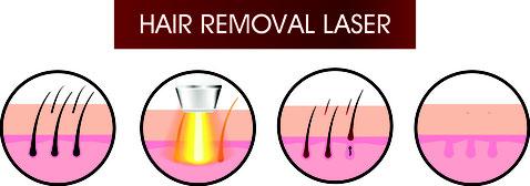 Beschreibung Vorgang SHR Haarentfernung Laser