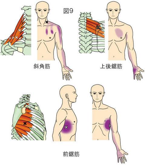 斜角筋・上後鋸筋・前鋸筋トリガーポイントによる痛み