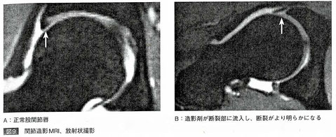 関節造影MRI、放射状撮影