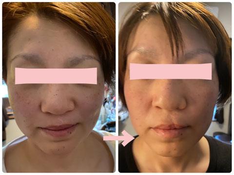 多治見の肌改善専門エステサロンでビューティークラフトメソッドの美の職人技フェイシャルでたるみ改善をした症例