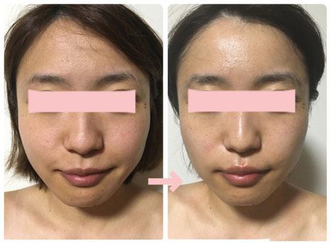 多治見の肌改善専門エステサロンでビューティークラフトメソッドの美の職人技フェイシャルでくすみ・毛穴改善をした症例