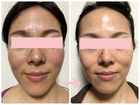 多治見の肌改善専門エステサロンのバクチ甦生プログラムで老化肌の改善をした症例写真です