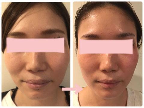 多治見の肌改善専門エステサロンでビューティークラフトメソッドの美の職人技フェイシャルで小顔&たるみ改善をした症例