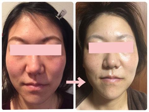 多治見の肌改善専門エステサロンでビューティークラフトメソッドの美の職人技フェイシャルでニキビ・赤み改善をした症例