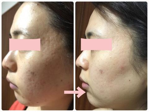 多治見の肌改善専門エステサロンのバクチ甦生プログラムでニキビ跡改善をした症例写真です