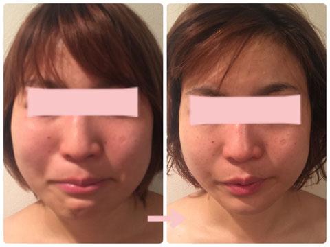 多治見の肌改善専門エステサロンでビューティークラフトメソッドの美の職人技フェイシャルで小顔改善をした症例