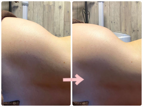 多治見の肌改善専門エステサロンでビューティークラフトメソッドの美の職人技ボディでくびれ作った症例