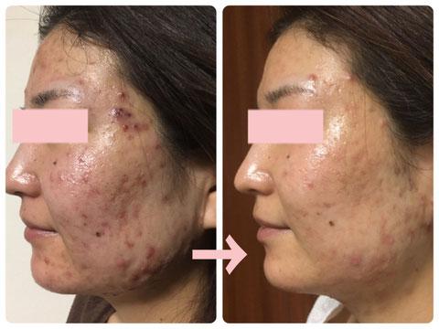 多治見の肌改善専門エステサロンのバクチ甦生プログラムでこもりニキビ改善をした症例写真です