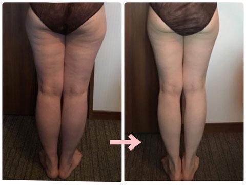 多治見の肌改善専門エステサロンでビューティークラフトメソッドの美の職人技ボディで下半身のセルライトケアをした症例