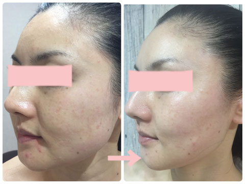 多治見の肌改善専門エステサロンでビューティークラフトメソッドの美の職人技フェイシャルでニキビ・小顔・たるみ改善をした症例