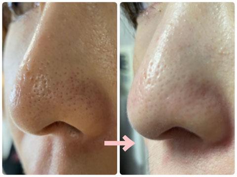 多治見の肌改善専門エステサロンでビューティークラフトメソッドの美の職人技フェイシャルで鼻の毛穴を改善をした症例