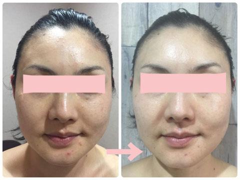 多治見でニキビ・たるみ・小顔・シミ・敏感肌・赤みなどの肌トラブルを肌改善へ導くコンプレックス改善専門エステサロンリトハピです。ミトコンドリアに着目した美容法で肌再生へ導いていきます。エステサロン専売化粧品 で自己甦生力を高めます。多治見・可児・美濃加茂・土岐・瑞浪・恵那・春日井・中津川・名古屋からもご来店いただいています。サロン専売化粧品のお取り扱い店様も募集中です。技術提供・開業支援もご相談下さい。