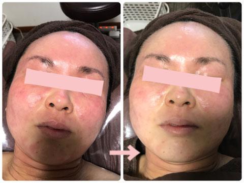 多治見の肌改善専門エステサロンのバクチ甦生プログラムで敏感肌の改善をした症例写真です