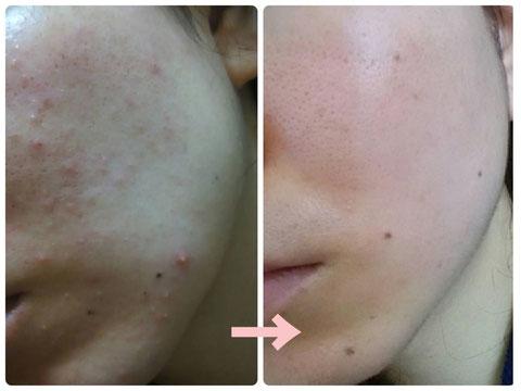 多治見でニキビ・たるみ・小顔・シミ・敏感肌・赤みなどの肌トラブルを肌改善へ導くコンプレックス改善専門エステサロンリトハピです。ミトコンドリアに着目した美容法で肌再生へ導いていきます。エステサロン専売化粧品 で自己甦生力を高めます。多治見・可児・美濃加茂・土岐・瑞浪・恵那・春日井・中津川・名古屋からもご来店いただいています。サロン専売化粧品のお取り扱い店様も募集中です。技術提供・開業支援もご相談下さい。バクチ甦生プログラムの結果です。