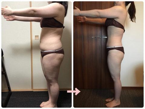 多治見の肌改善専門エステサロンでビューティークラフトメソッドの美の職人技ボディで-15キロ減のダイエットをした症例
