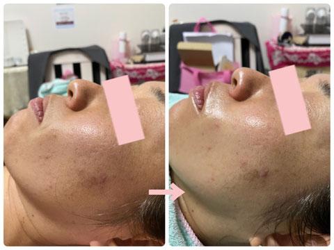 多治見の肌改善専門エステサロンのバクチ甦生プログラムでシミ・毛穴の開き改善をした症例写真です