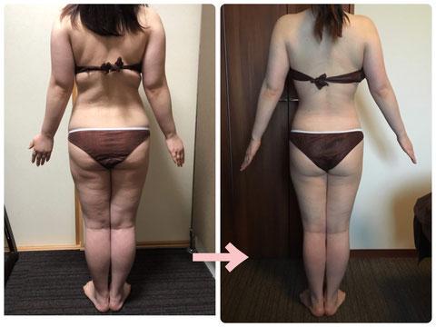 多治見の肌改善専門エステサロンでビューティークラフトメソッドの美の職人技ボディで-8キロ減のダイエットをした症例