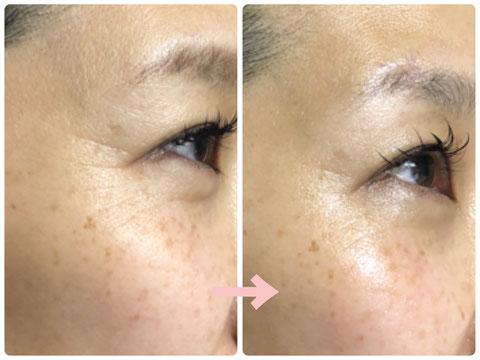 多治見の肌改善専門エステサロンのバクチ甦生プログラムでシワ改善をした症例写真です