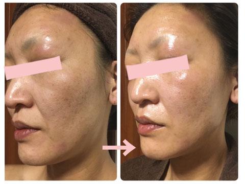 多治見の肌改善専門エステサロンのバクチ甦生プログラムでくすみ肌の改善をした症例写真です
