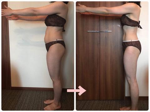 多治見の肌改善専門エステサロンでビューティークラフトメソッドの美の職人技ボディで-産後ダイエットをした症例