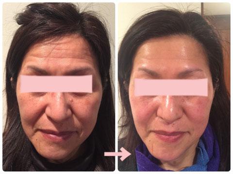 多治見の肌改善専門エステサロンのバクチ甦生プログラムでたるみ改善をした症例写真です