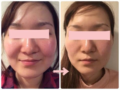 多治見の肌改善専門エステサロンのバクチ甦生プログラムで赤み改善をした症例写真です