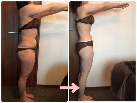多治見の肌改善専門エステサロンでビューティークラフトメソッドの美の職人技ボディで2カ月で-8キロ減のダイエットをした症例
