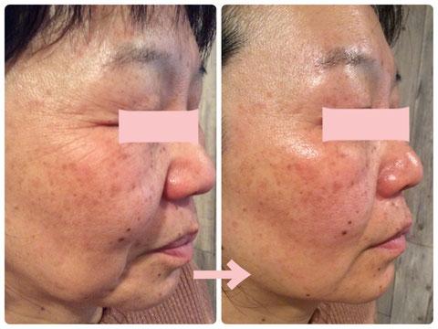 多治見の肌改善専門エステサロンのバクチ甦生プログラムでたるみ&しわ改善をした症例写真です