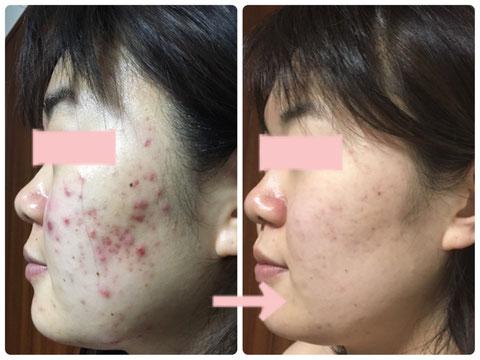 多治見の肌改善専門エステサロンのバクチ甦生プログラムでニキビ改善をした症例写真です