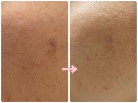 多治見の肌改善専門エステサロンのバクチ甦生プログラムでシミ改善をした症例写真です