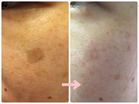 多治見でニキビ・たるみ・小顔・シミ・敏感肌・赤みなどの肌トラブルを肌改善へ導くコンプレックス改善専門エステサロンリトハピです。ミトコンドリアに着目した美容法で肌再生へ導いていきます。エステサロン専売化粧品 で自己甦生力を高めます。多治見・可児・美濃加茂・土岐・瑞浪・恵那・春日井・中津川・名古屋からもご来店いただいています。サロン専売化粧品のお取り扱い店様も募集中です。技術提供・開業支援もご相談下さい。シミの結果です。