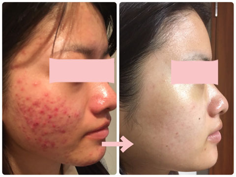 多治見でニキビ・たるみ・小顔・シミ・敏感肌・赤みなどの肌トラブルを肌改善へ導くコンプレックス改善専門エステサロンリトハピです。ミトコンドリアに着目した美容法で肌再生へ導いていきます。エステサロン専売化粧品 で自己甦生力を高めます。多治見・可児・美濃加茂・土岐・瑞浪・恵那・春日井・中津川・名古屋からもご来店いただいています。サロン専売化粧品のお取り扱い店様も募集中です。技術提供・開業支援もご相談下さい。ニキビの結果です。