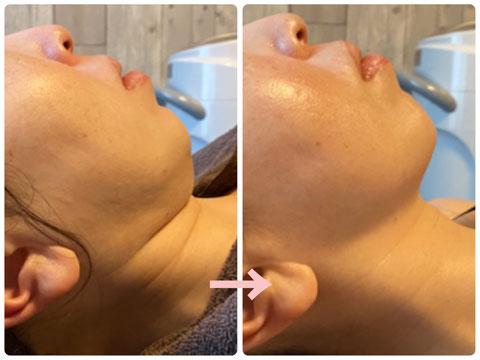 多治見の肌改善専門エステサロンのバクチ甦生プログラムで顎のたるみ改善をした症例写真です