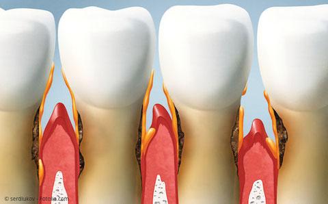 Zahnfleischtaschen und Zahnfleischentzündung bei Parodontose