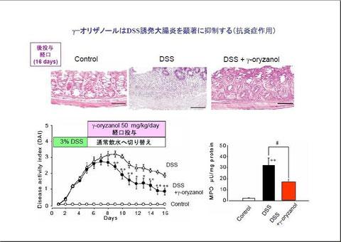 γ-オリザノールの大腸炎抑制効果