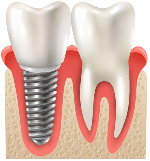 Implantate haben den Vorteil, dass die Nachbarzähne unangetastet bleiben.