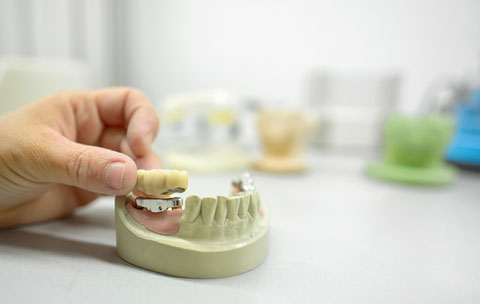 Funktionell und ästhetisch hochwertiger Zahnersatz bietet eine Brücke.
