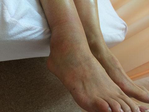 豊田市 おおつか接骨院 右足関節脱臼骨折 外観写真前外側
