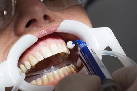 Dentcoat wird auf die saubere und getrocknete Zahnoberfläche aufgetragen und dringt bis in die tiefen Schichten des Zahnschmelzes ein