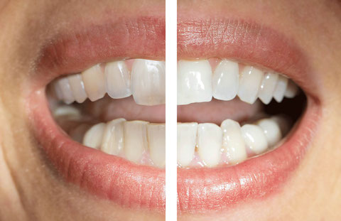 Vorher  -  Nacher:  Regeneration und ästhetische Revitalisierung - deutlich zu erkennen die Ausbildung einer glatten, glänzenden  Oberfläche und  die Homogenisierung und leichte Aufhellung der Zahnstruktur