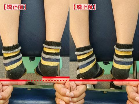 矯正前、骨盤のねじれによって右足が短いのが確認できます。  矯正後は、左右の足の長さが綺麗に揃いました。