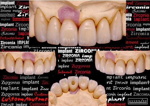 zirconiaImplant