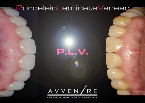 PorcelainLaminateVeneer