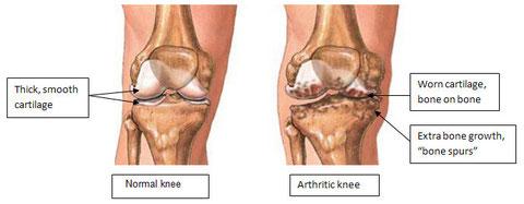 Osteoarthritis - Knee - Senior Elderly Care